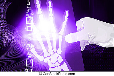 x ray film - Illustration of a hand holding a x ray film