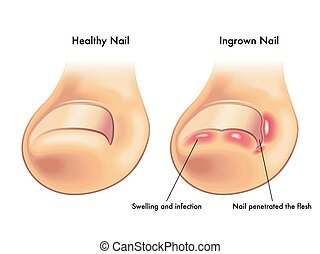 Ingrown Nail - medical illustration of the symptoms of...
