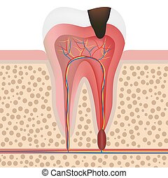 Illustration of infected tooth - Vector illustration showing...