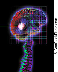 radio surgery - photo montage showing brain tumor being...