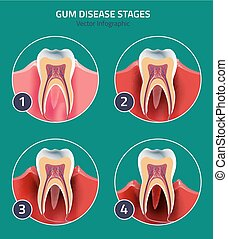 Gum disease vector - Gum disease stages. Editable vector...
