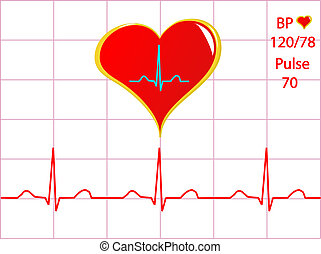 A healthy heart illustration with a cardiac trace showing...