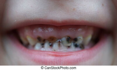 footage caries on the teeth of the child close up HD video