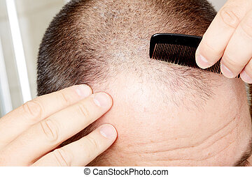 Man head with a comb. - Man head close-up with a comb. Hair...