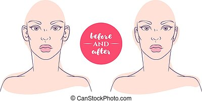Portrait of a woman before and after with cosmetic defects....