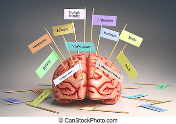 Brain Diseases - Image of a brain on the table with various...