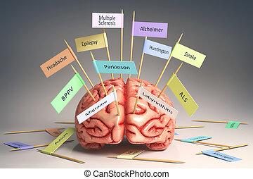 cerebro, enfermedades,