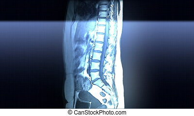 Spine MRI Scan - Spine and internal organs MRI scan