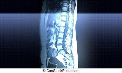 Spine MRI Scan - Spine and internal organs MRI scan