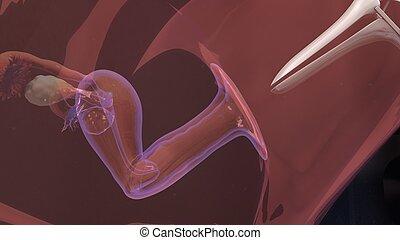 In vitro fertilization - Human fertilization is the union of...