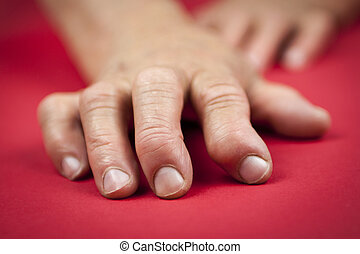 Rheumatoid arthritis hands. Red background