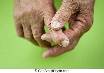 Rheumatoid arthritis hands. Rheumatoid finger