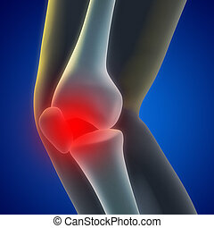 Knee Pain - An illustration of a knee xray showing the...