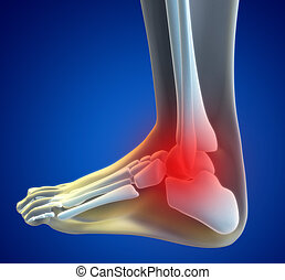 Knee Pain - An illustration of a foot xray with a red spot...
