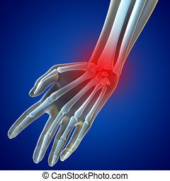Knee Pain - An illustration of a wrist xray showing the...