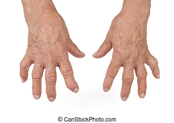 Old Woman's Hands Deformed From Rheumatoid Arthritis...