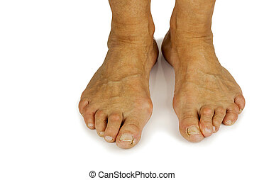 Cracked toe and bunion deformity in white backgrouynd. Copy...
