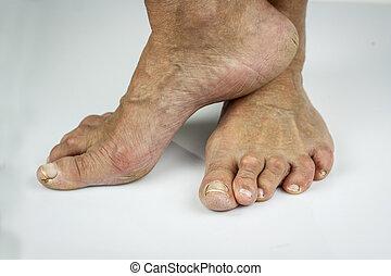 Rheumatoid arthritis ffeet. Cracked skin toe