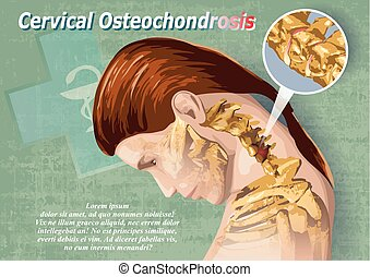 Cervical Osteochondrosis - Female image showing a cervical...