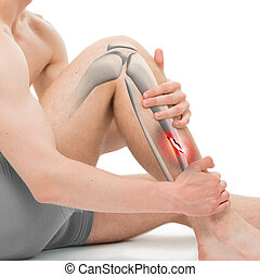 Spiral Fracture of the Tibia - Leg Fracture 3D illustration