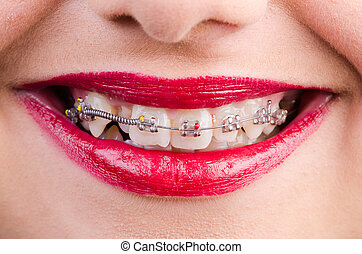 Woman with brackets isolated on white