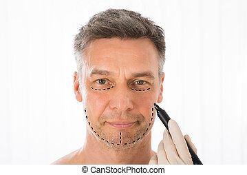 Surgeon Drawing Correction Lines On Man Face - Close-up Of...