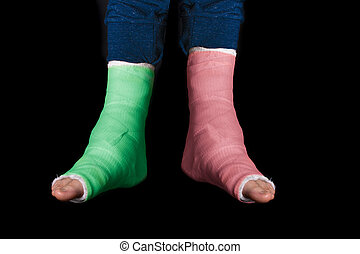 Two leg casts - red and green - Young man with two broken...