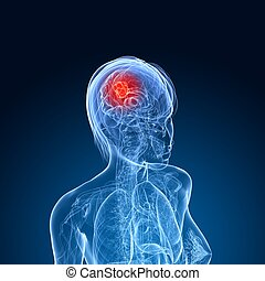 cerebral,  tumor