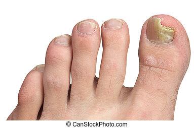 uña del dedo del pie, hongo, pico, infección