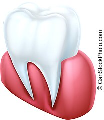 Tooth and Gum - A dental cutaway medical illustration of a...