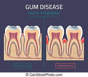 Gum disease vector - Teeth infographic. Gum disease chart....
