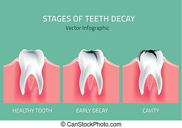 Teeth vector Anatomy - Teeth disease infographic. Gum...