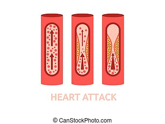 heart attack symptoms vector - heart attack symptoms...