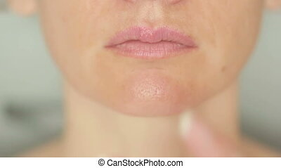 girl touching sores on the lips. herpes. lip treatment -...
