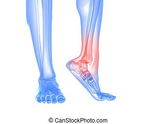 painful ankle illustration - 3d rendered illustration of a...