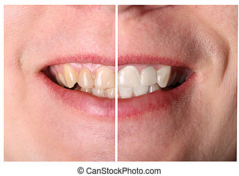 tooth restoration before and after treatment - Mans incisive...
