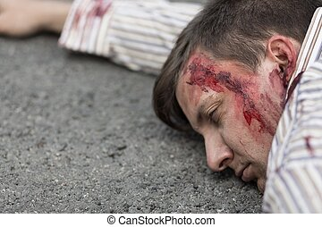 Injured man after car accident - Photo of injured man with...
