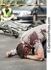 Injured man after vehicle collision - Image of injured man...