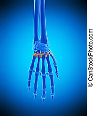 the palmar metacarpal ligaments - medically accurate...