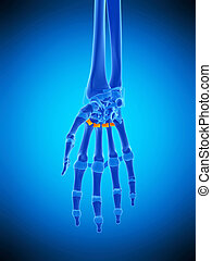 the palmar metacarpal ligament - medically accurate...
