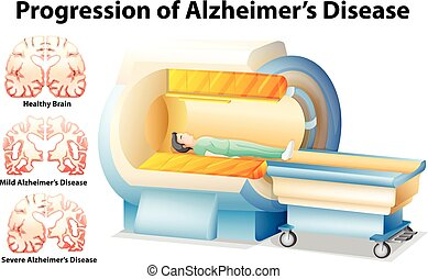 Progression of Alzheimers Disease illustration