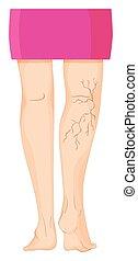 Varicose veins on human legs