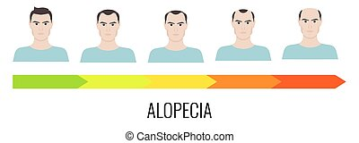 Male pattern alopecia - Alopecia stages set. Front view of a...