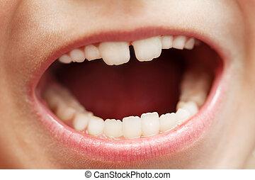 宏, 牙齒