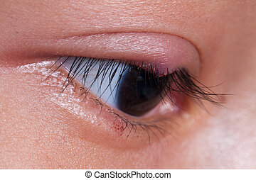 right upper eye lid abscess - Close up right upper eye lid...