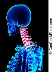 Neck painful skeleton x-ray, 3D illustration.