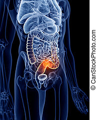 bowel cancer - 3d rendered, medically accurate illustration...