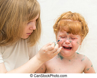 Little girl mom lubricates the cure for chicken pox