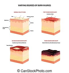 Skin burn classification.
