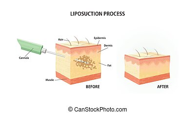 Liposuction process.Suction-assisted liposuction. Vector...